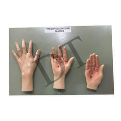Forensic Model : Type Of Occupational Marks