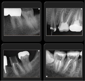 Genoray Portable X-ray Port XII