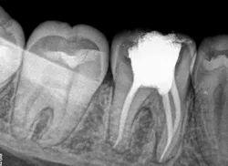 Endodontic Treatment-Root Canal Treatment