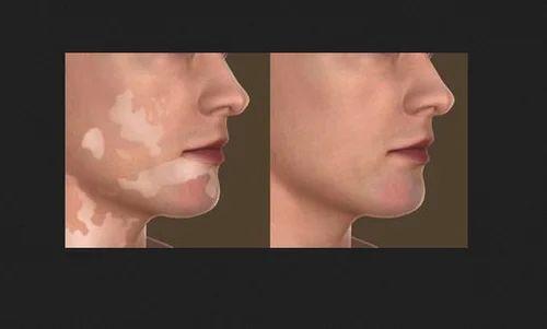 Vitiligo Skin Treatment Service In Pal Road Jodhpur Id 18915636688