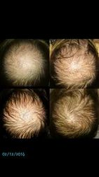 PRP Therapy/ Treatment for Hair Loss