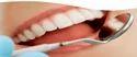 Teeth Treatment Service