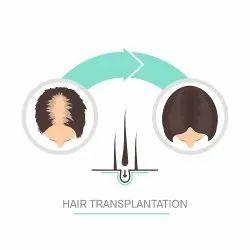 Hair Transplantation Treatment