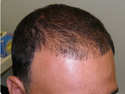 Hair Loss Causes Solution Service