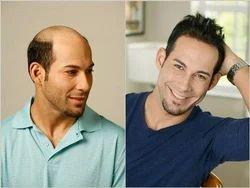 Hair Weaving for Men