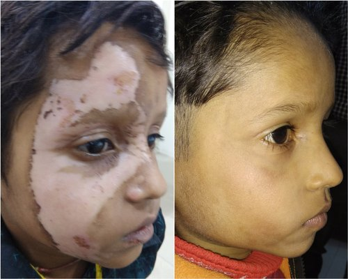 www vitiligo disease com