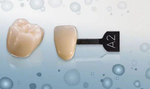 3M CAD/CAM PFM Dental Crown, Dentist Tools, Equipment