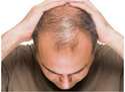 Hair Loss Treatment Service