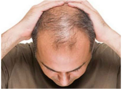 Hair Loss Treatment Service