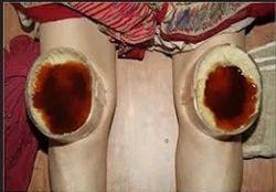 Janu Basti Treatment Services