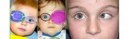 Squint And Pediatric