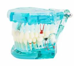 Dental Restoration Implant Model