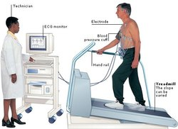 Tmt Machine Stress Test Machine