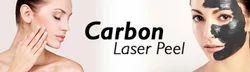 Carbon Peeling Treatment Service