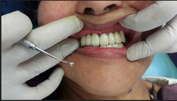 Get Fixed Teeth Implant In 3 Days