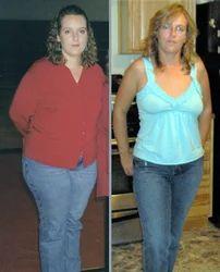 Natural Weight Loss Treatment