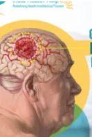 Brain Tumors Cancer Treatment Service