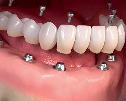 Dental Implants Treatment Services