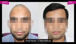 Standard Laser Replcaement Baldness teatment