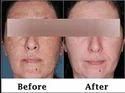 Skin Peels Treatments