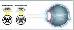 Cataract And Phaco Surgery Treatment Service