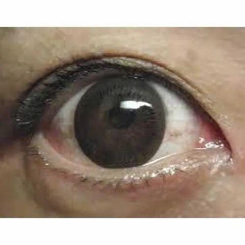 Silklens Phema 45 Eye Optical Contact Lenses, Packaging Type: Box