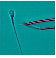 Intra Cytoplasmic Morphologically Selected Injection