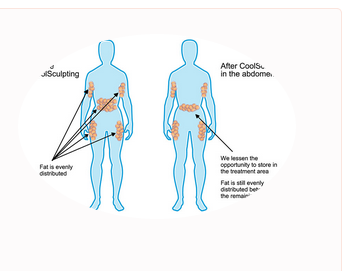 Coolsculpting Or Cryolipolysis Treatment Service in Wakad