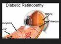 Diabetic Retinopathy Treatment Service