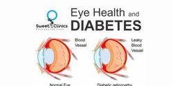 Diabetes Eye Care Treatment