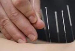Medical Acupuncture Treatment