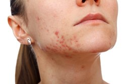Acne Treatment Skin Service