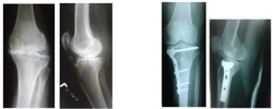 High Tibial Osteotomy-MJ OA Knee