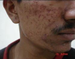 Acne Vulgaris Disease