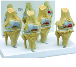 Osteoarthritis Stages Anatomy Model