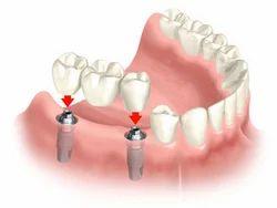 Dental Implants Prosthesis Treatments Service