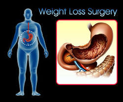Bariatric Surgery Services