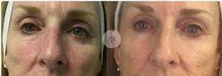 Skin Tightening Treatment Services