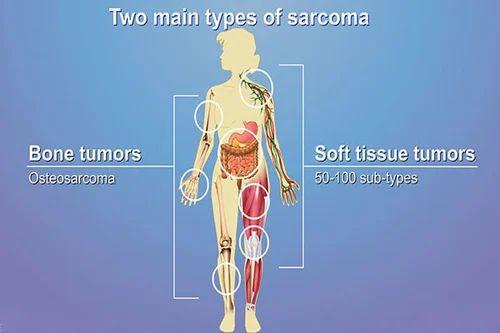 Soft Tissue Tumour Treatment Service in Malviya Nagar