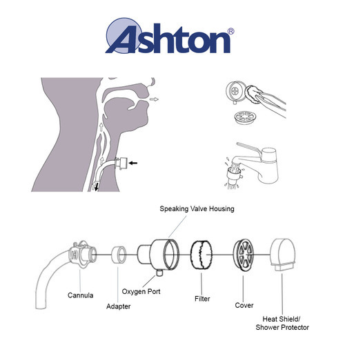 Speaking Valve For Tracheostomy Tube Patients Home Use