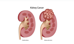 Kidney Cancers Treatment Service