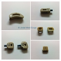 Peek Cages Set Orthopedic Spinal Implant