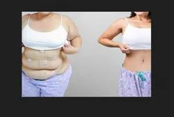 Weight Loss Surgery Service