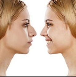 Open & Closed Rhinoplasty or Nose Correction Surgery