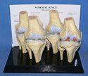 Knee Joint Disease Model