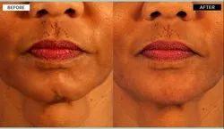 Get Rid of Double Chin with Botox Treatment in chennai