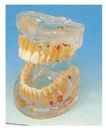 Transparent Dental Pathology Model