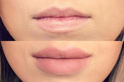 Lip Filler Treatment