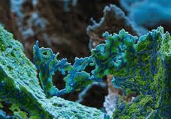 Lactobacillus Reuteri Probiotic