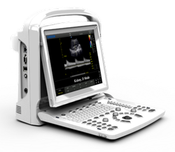 Chison B/W Ultra Sound Scanner